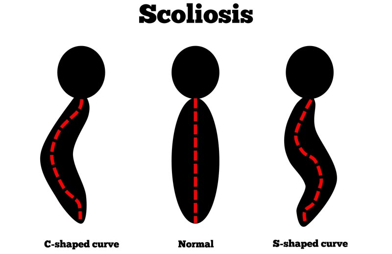 Clemmons and Greensboro, North Carolina scoliosis treatment